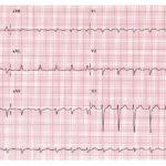 Atrial Tachycardia, electrocardiogram