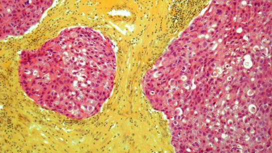 Light micrograph of breast cancer
