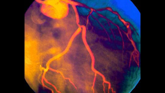 Coronary artery, angiogram, angiography, coronary artery disease, CAD