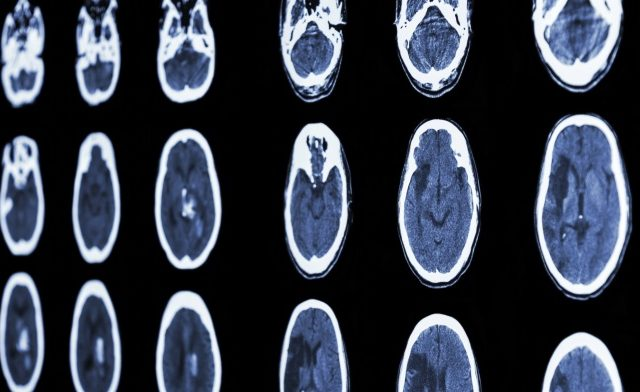Brain CT scans of stroke