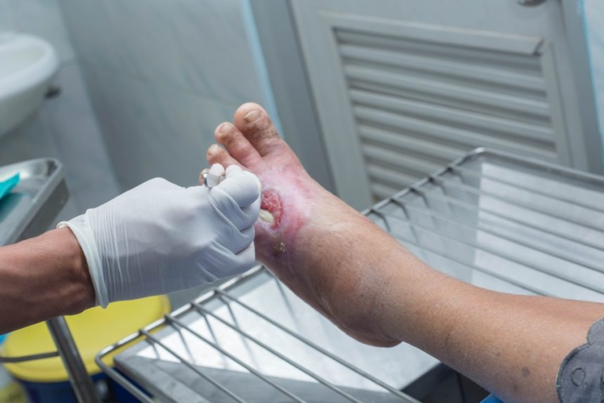 Clinician treating a diabetic foot ulcer.