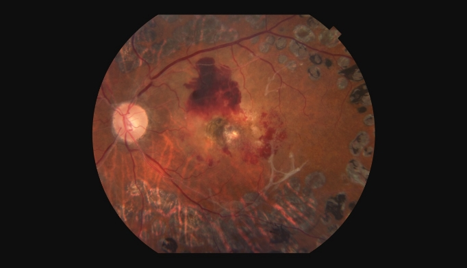 Proliferative Diabetic Retinopathy Outcomes: Ranibizumab vs ...