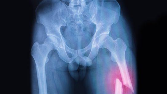 X-ray of a femoral fracture.