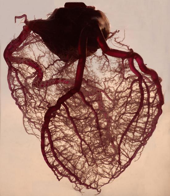 cardiac heart CVD CAD