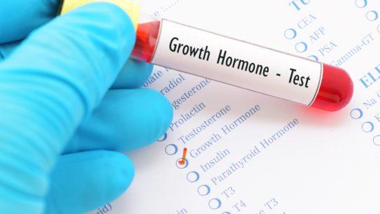 Growth hormone test