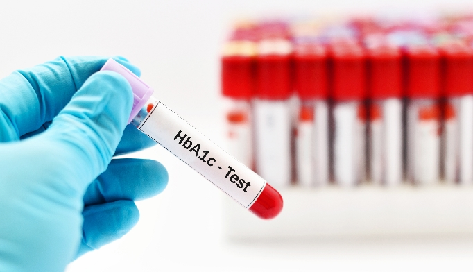 Elevated HbA1c may increase mortality in older patients with diabetes.