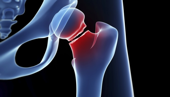 Subclinical Hyperthyroidism Tied to Increased Fracture Risk