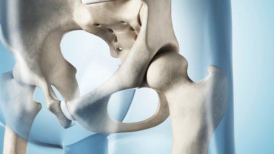 Bisphosphonate 'Drug Holidays' Safe for Women With Osteoporosis