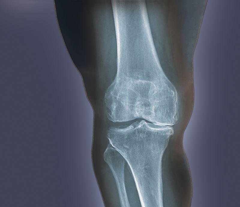 An x-ray of knee arthritis