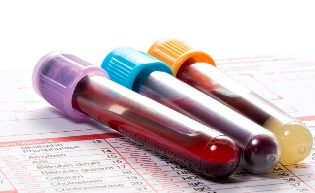 Laboratory blood samples