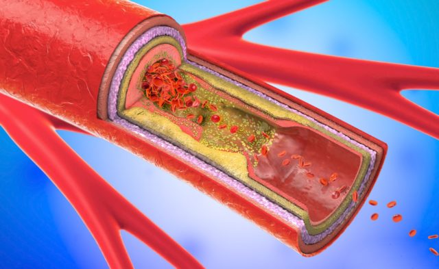 narrowing of blood vessel