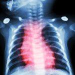 low vitamin D in pediatrics linked to heart disease