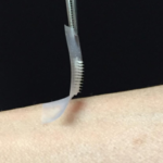 "This is the ""smart insulin patch,"" developed by researchers in the joint UNC/NC State Biomedical Eng"