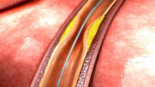 PCI Outcomes Cardiac Surgery