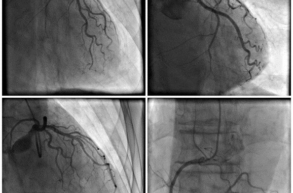 Diagnosis of CAD in RA