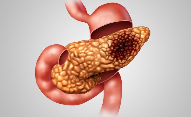pancreas pancreatic cancer malignancy