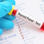 Thyroid panel blood test