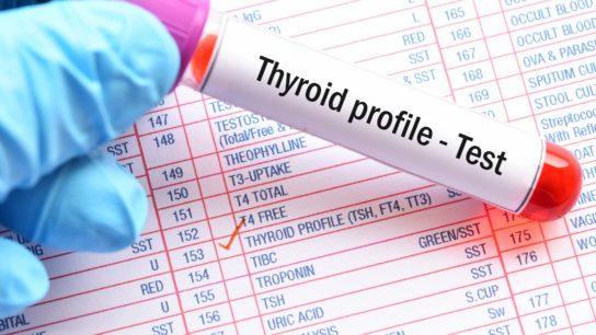 thyroid profile test