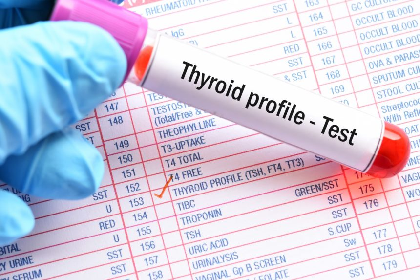 thyroid profile test