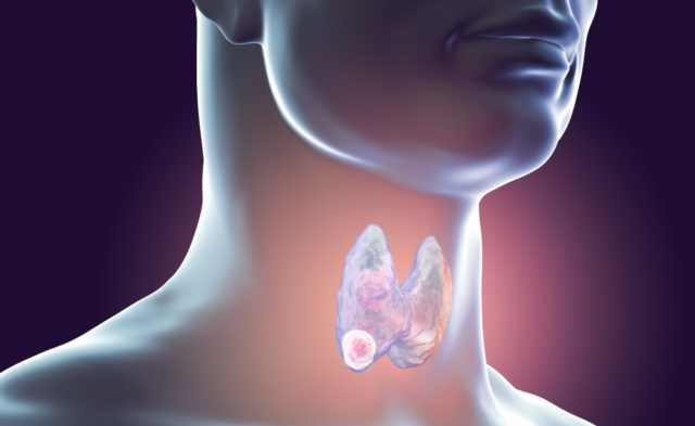 Thyroid tumor illustration