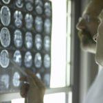 Working Memory Worse in Type 2 Diabetes