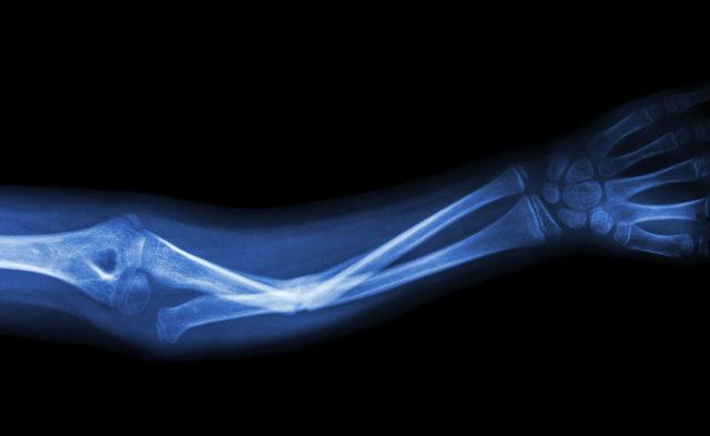 Xray arm fracture