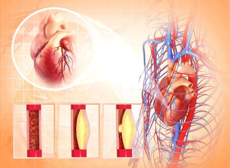 Atherosclerosis concept illustration