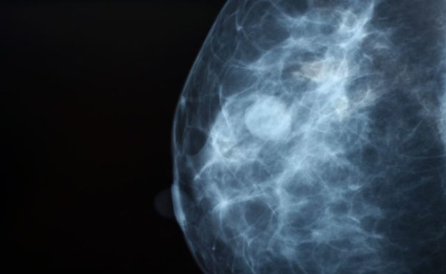 Close-up of a mammogram