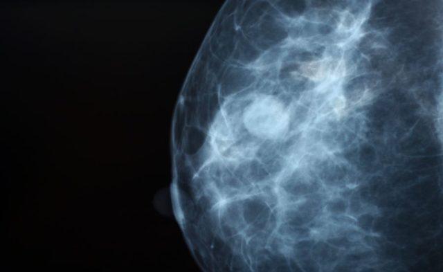 Close-up of a mammogram