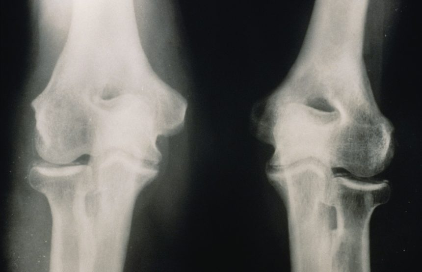 knee joint affected by Chondrocalcinosis