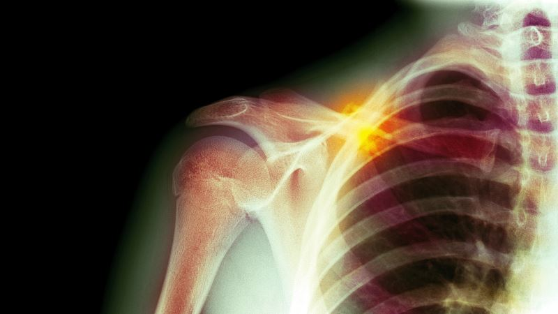 An x-ray of a fracture collarbone