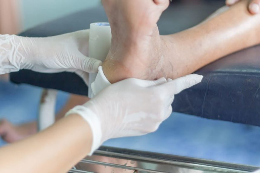 An infected diabetic foot