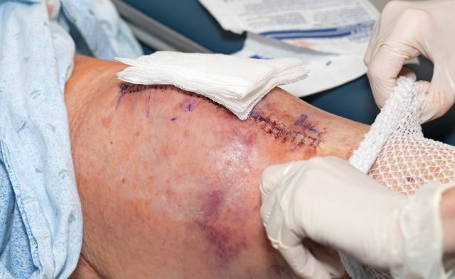 knee replacement stitches