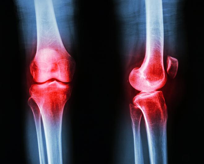 Osteoarthritis knee (Inflammation at knee)