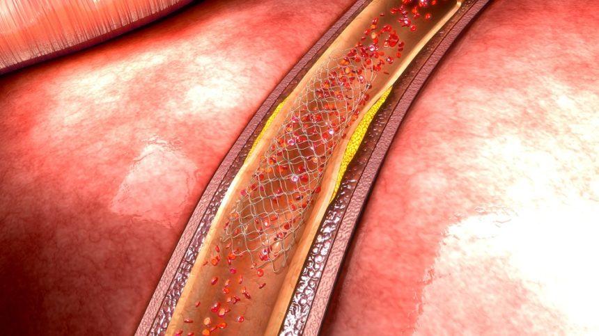 stent image