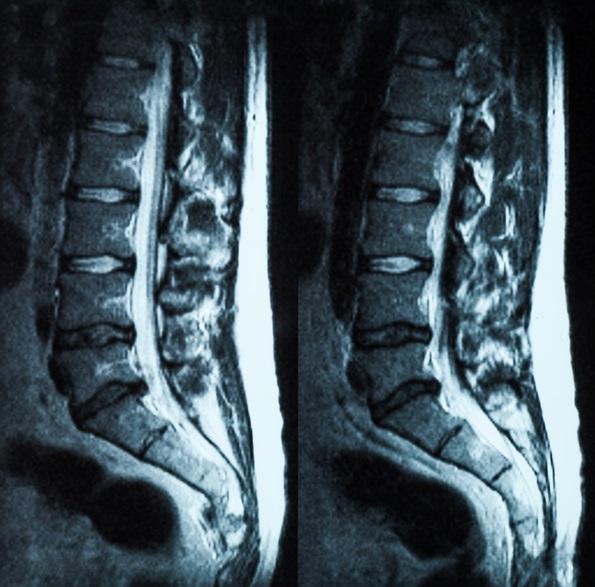 spine lumbar vertebra MRI lower back