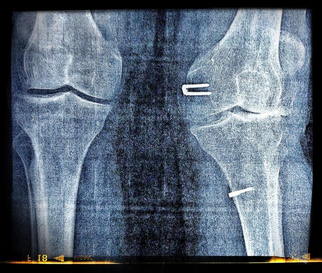 knees x-ray
