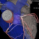 Heart ct scan