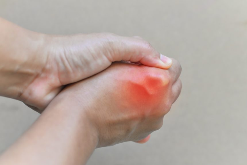 inflamed gout