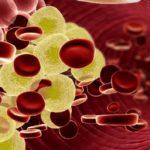 Cholesterol bloodstream