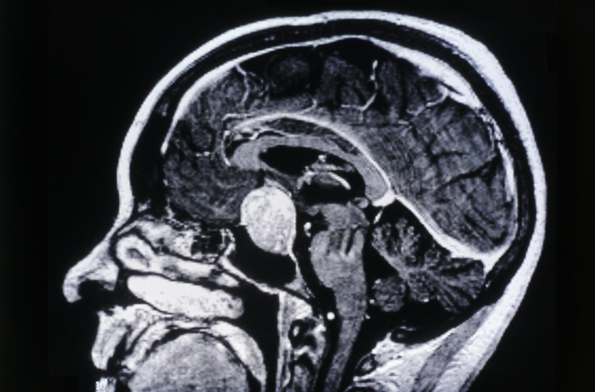 adenoma hypophysis