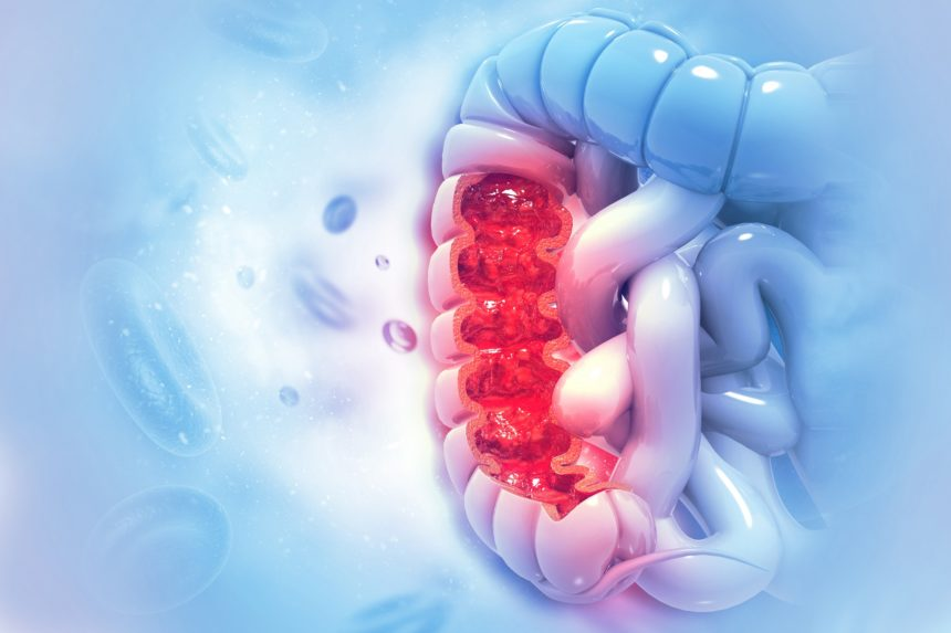 Bariatric Surgery May Increase Risk For Colon Cancer Endocrinology Advisor