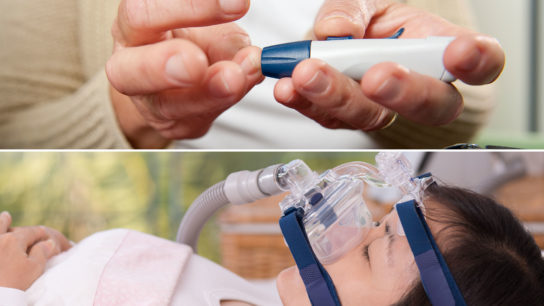 diabetes and OSA, CPAP