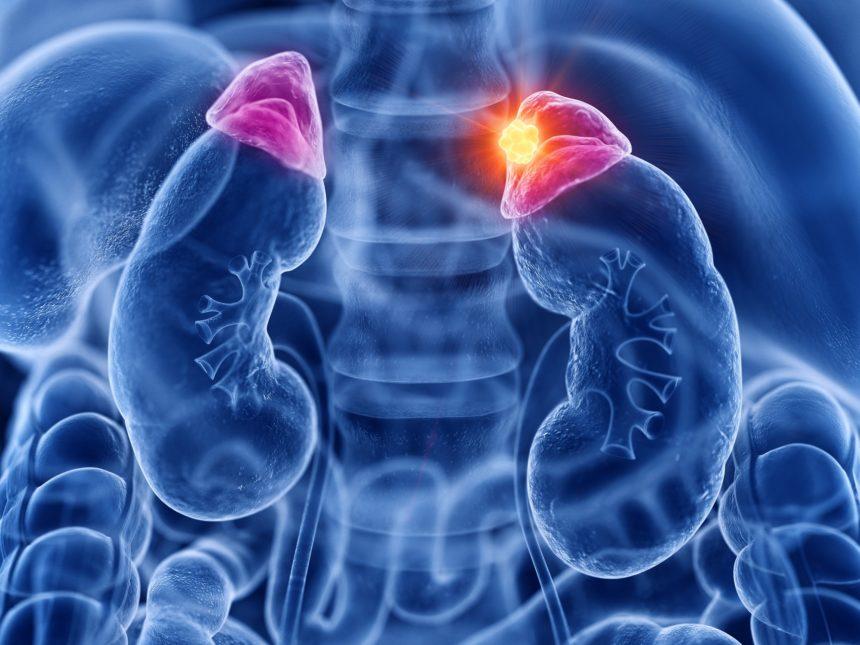 Adrenal gland cancer
