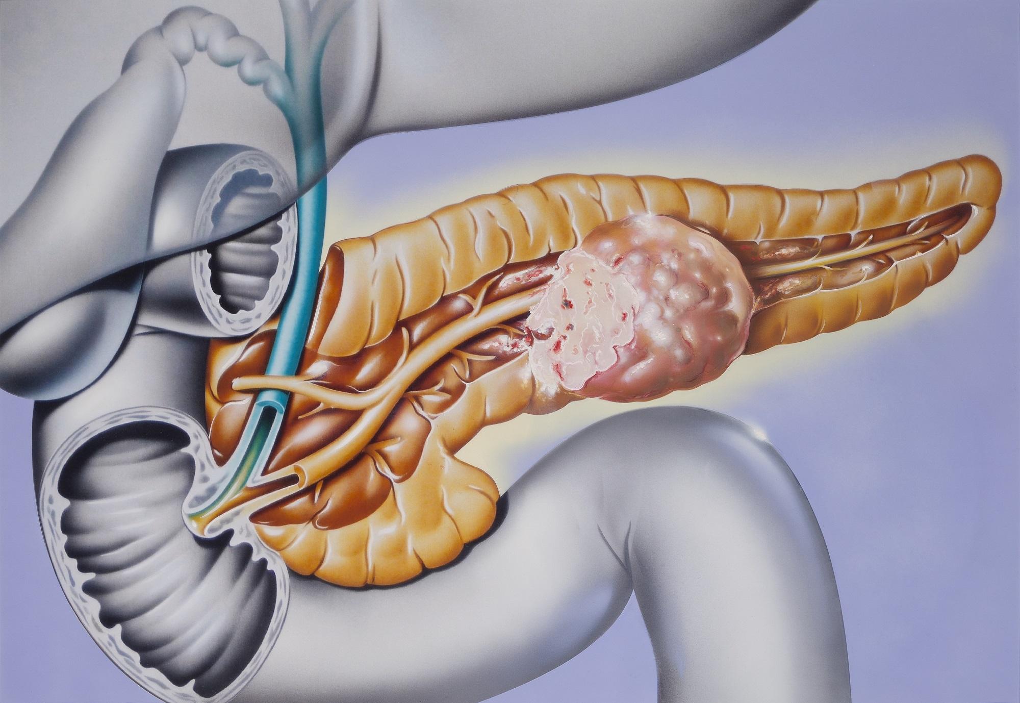 Neuroendocrine cancer nci, Viermi, cum să scoți rapid un bărbat