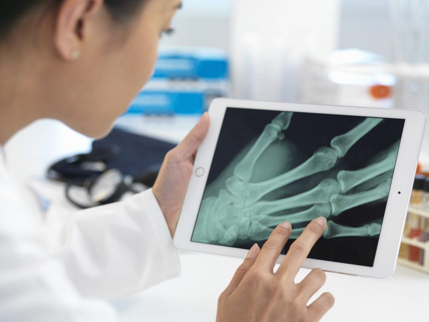 doctor viewing hand Xray