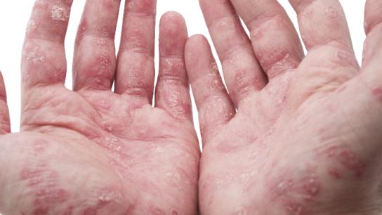 Psoriasis and psoriatic arthritis increase cardiovascular risks.