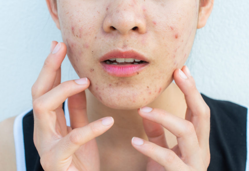 acne face woman hands fingers