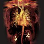 cardiac MRI, cardiovascular